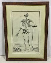 Skeleton etching